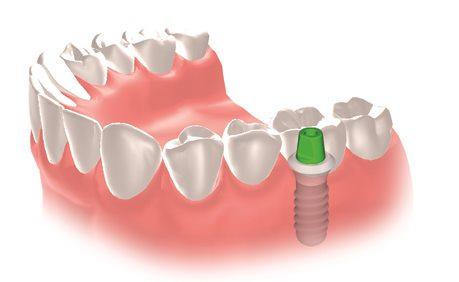 Implantat Einzelzahn