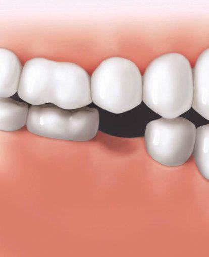 Zahnlücke Unterkiefer, Zahnverlust