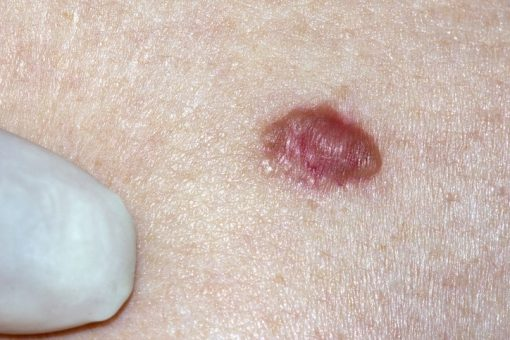 Hautkrebs - Basaliom