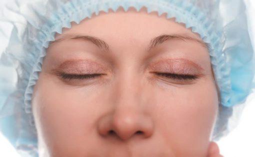 Ästhetik - Augenlidkorrektur
